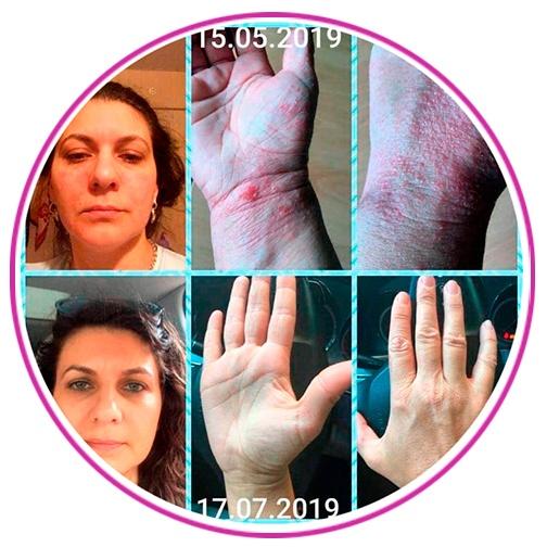 болезни кожи, отзывы новая эра, новая эра отзывы, атопический дерматит, холодовой дерматит, контактный дерматит, нейродерматит, крапивница, псориаз, рак кожи, аллергия